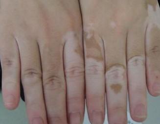 外伤会引发白癜风疾病吗