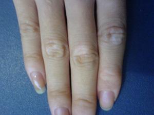 哪里治疗白癜风:治疗手部白癜风的措施
